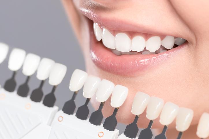 Lepe zubi